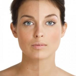 Винная кислота в косметологии