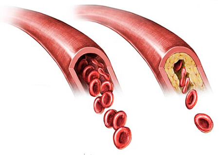 если повышен холестерин в крови что делать