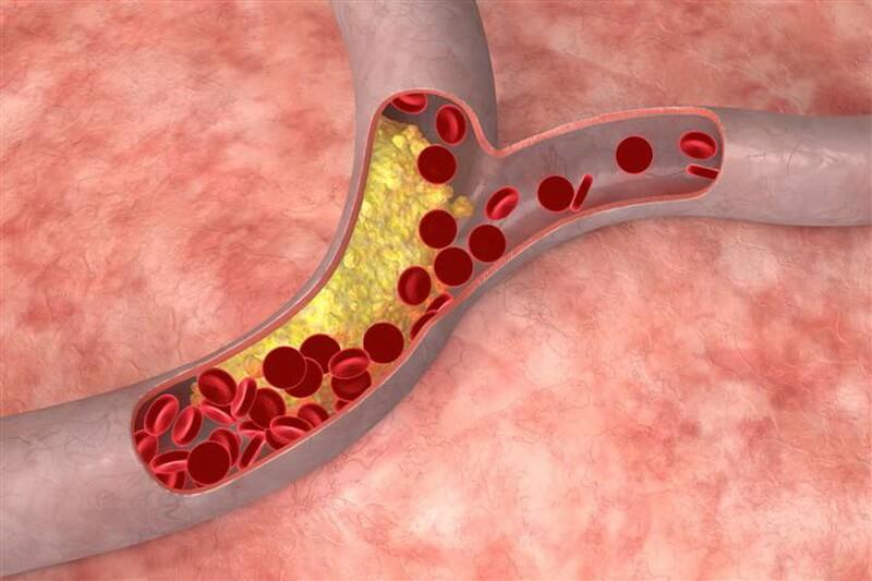Холестерин и зоостерины