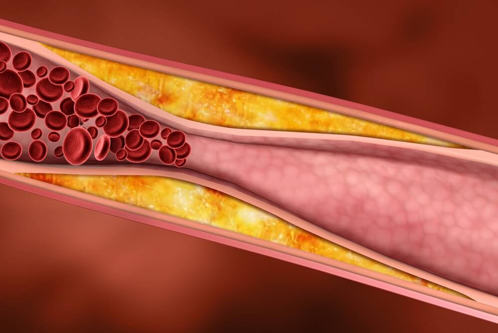 масла снижения холестерина