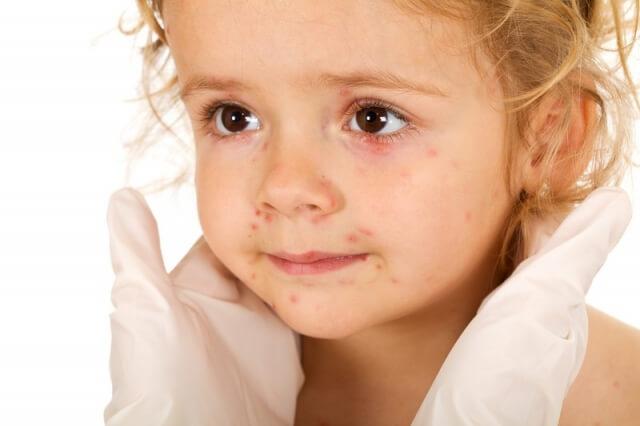 Аллергия на пробиотики