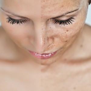 Витамин P против пигментации кожи лица