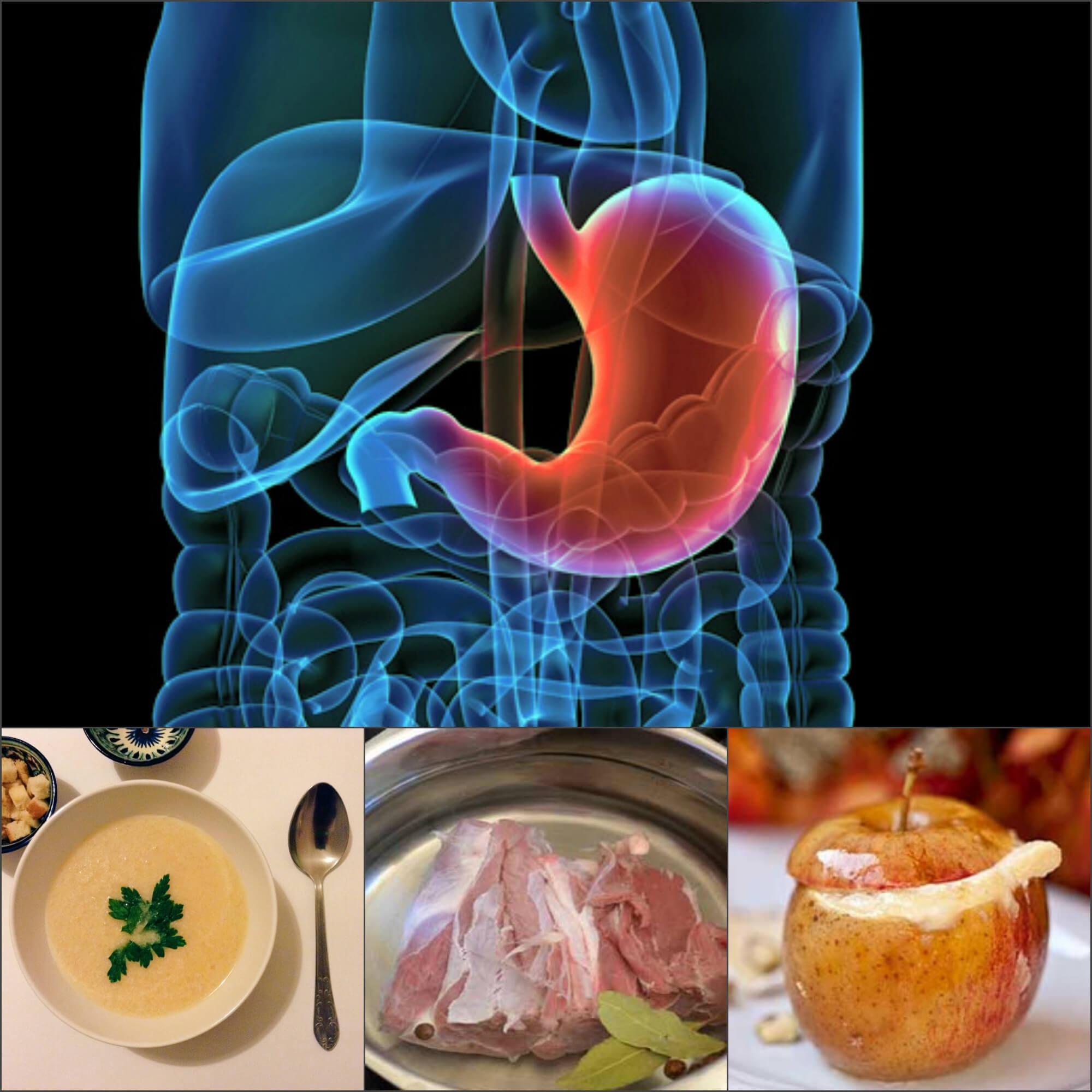 Симптомы, причины и лечение эрозии желудка диета