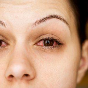 Симптомы и признаки глаукомы