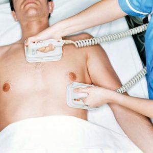 Дефибрилляция сердца