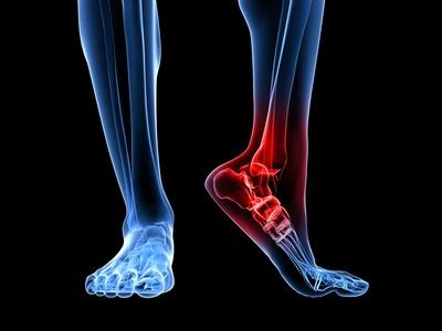 Травма голеностопного сустава, кт влияние переохлаждения на воспаленные суставы