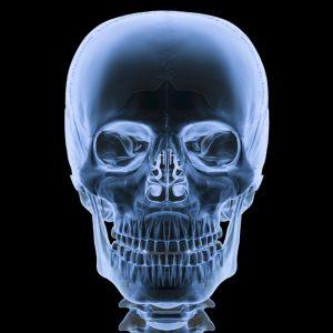 Компьютерная томография (КТ) костей черепа