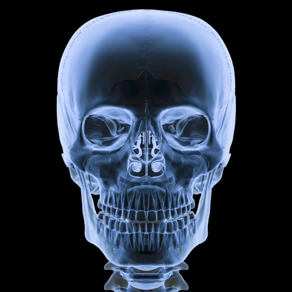 Кт лицевого черепа