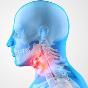 Компьютерная томография (КТ) мягких тканей и органов шеи
