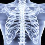 Компьютерная томография (КТ) органов грудной клетки