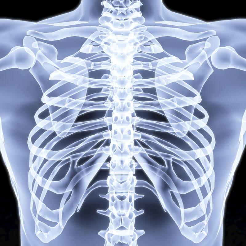 КТ грудной клетки - 57 адресов