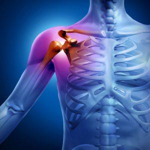 Компьютерная томография (КТ) плечевой кости