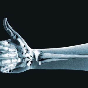 Компьютерная томография (КТ) запястья и кисти