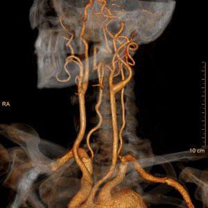 КТ-ангиография сосудов головы и шеи