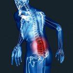 Магнитно-резонансная томография (МРТ) пояснично-крестцового отдела позвоночника