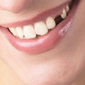 Отсутствие зубов