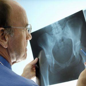 Рентген (рентгенография) костей таза