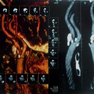 Снимок брюшной аорты и ее ветвей