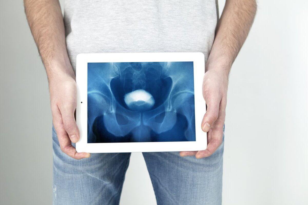 Обследование уретры у мужчин