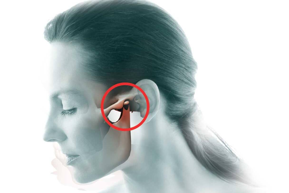 Исследование подвижности челюстного сустава называется остеотомия коленного сустава отзывы