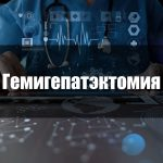 Гемигепатэктомия
