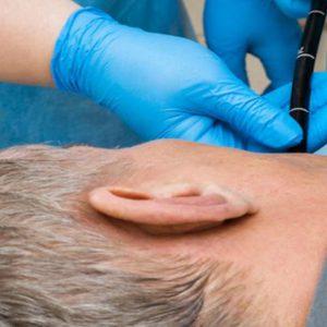 Холангиоскопия (холедохоскопия)
