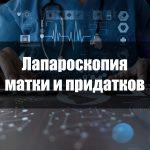 Лапароскопия матки и придатков