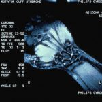 Магнитно-резонансная томография (МРТ) лучезапястного сустава