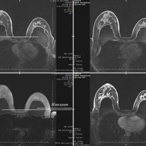 Магнитно-резонансная томография (МРТ) молочных желез