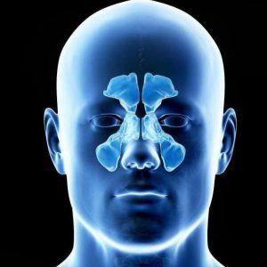 Магнитно-резонансная томография (МРТ) придаточных пазух носа