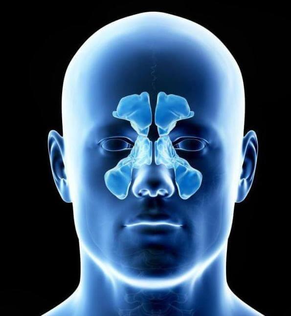 Томография пазух носа