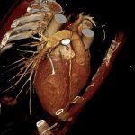 Магнитно-резонансная томография (МРТ) сердца