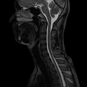 Магнитно-резонансная томография (МРТ) шейного отдела позвоночника