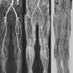 Магнитно-резонансная томография (МРТ) сосудов конечностей