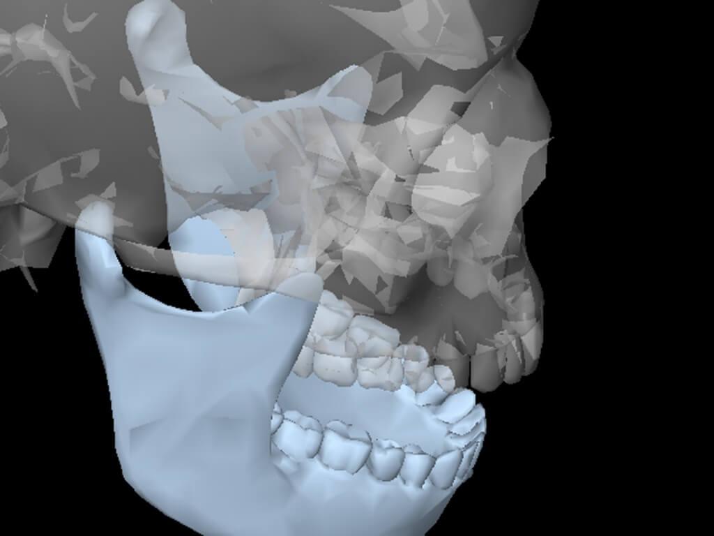 МРТ височно нижнечелюстного сустава: плюсы и минусы диагностики