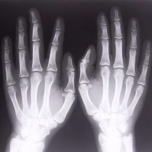 Рентген (рентгенография) кисти и запястья