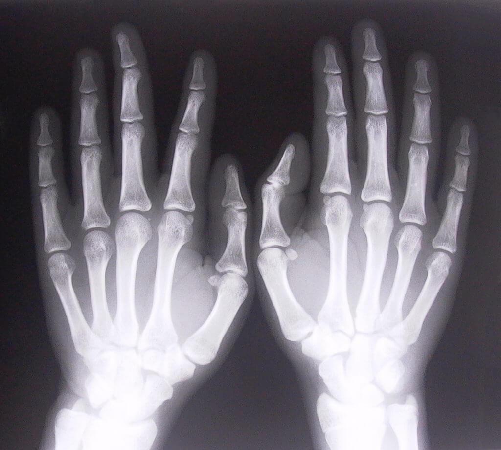 Кости запястья на рентгенограмме
