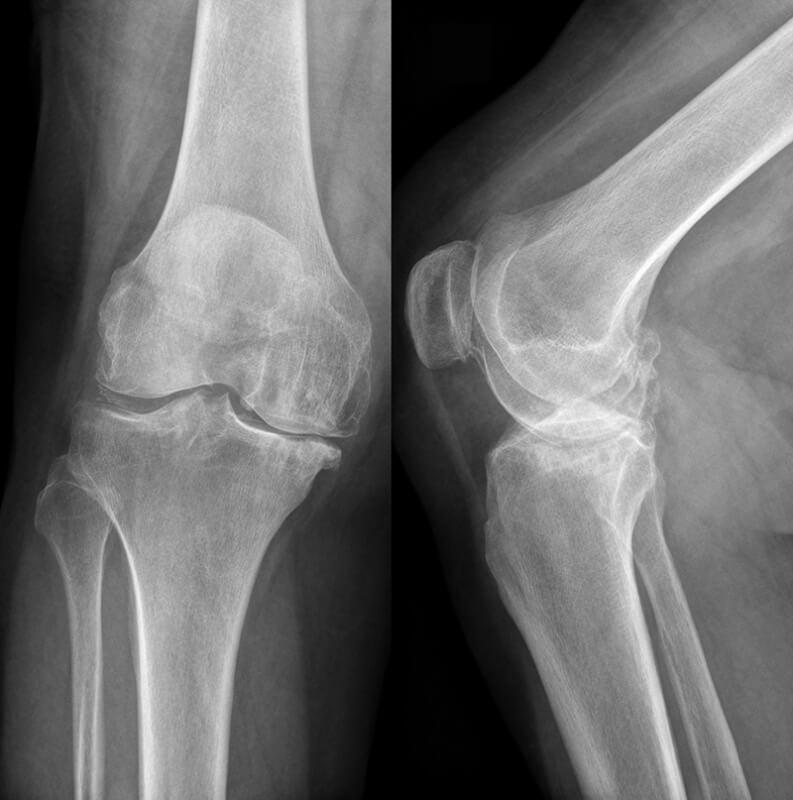 Снимок локтевого сустава в норме