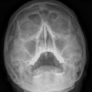 Рентген (рентгенография) придаточных пазух носа