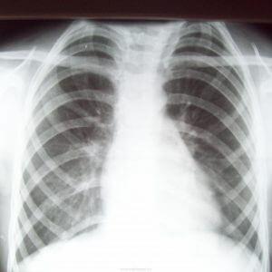 Рентген (рентгенография) ребер