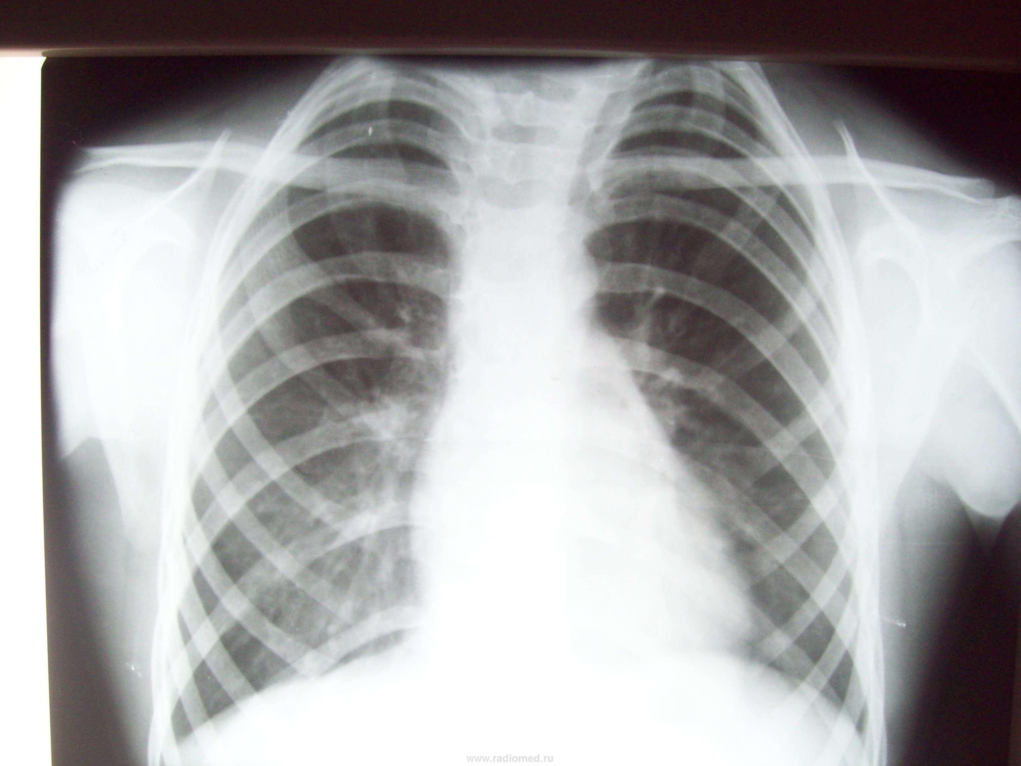 люшко ребро фото
