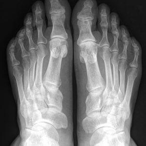 Рентген (рентгенография) стопы и голеностопного сустава