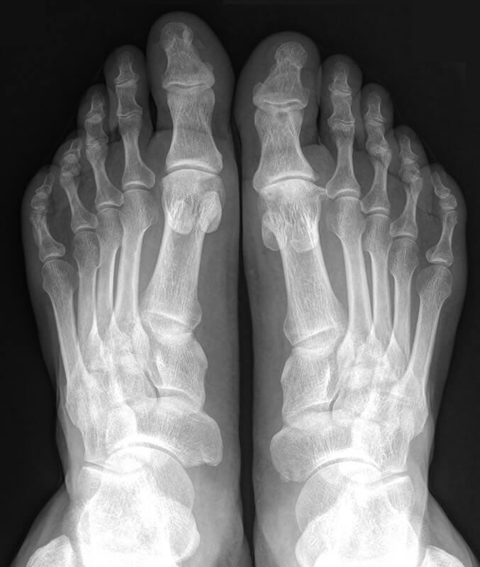 Как проводят рентгенографию стопы и что она показывает