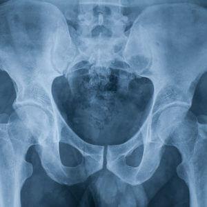 Рентген (рентгенография) тазобедренного сустава у взрослых