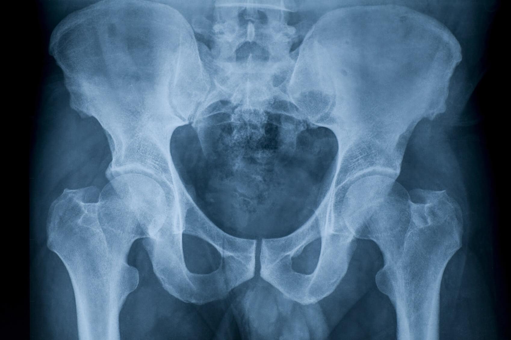 Проведение рентгена тазобедренного сустава настойка из сирени от суставов