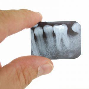 Рентген (рентгенография) зуба