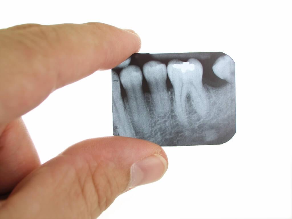 Рентген всех зубов сразу как называется. Панорамный снимок зубов: показания, как делают и чем отличается от обычного снимка? Сколько стоит панорамный снимок зубов