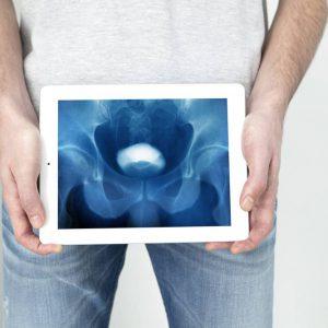 Рентген (уретрография) мочеиспускательного канала у мужчин и женщин