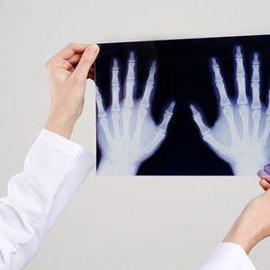 Рентгенологическое исследование кисти
