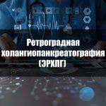 Ретроградная холангиопанкреатография (ЭРХПГ)